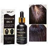 Sérum de croissance des cheveux,Contre La Chute Des Cheveux,Traitemente Perte De Cheveux,Anti Chute de Cheveux,contre l'amincissement et la perte de cheveux,Traitement pour homme et pour femme 30ML