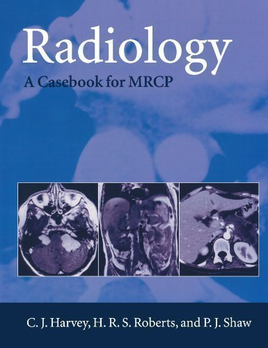 Radiology: A Case-book for MRCP: A Case-book for the MRCP (Oxford Medical Publications) by Harvey, C. J., Shaw, P. J. published by OUP Oxford (1999)