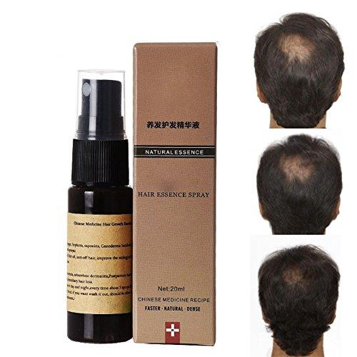 Essence de Croissance Rapide de Cheveux Bio, Sérum de Cheveux KISSION 20ml, Sérum de Croissance des Cheveux, Cheveux Plus Sains, Essences Nourrissantes pour le Soin des Cheveux
