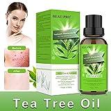 Teebaumöl Bio Naturrein 100% - Teebaum öl Tea Tree Oil für Shampoo Gesicht - Akne Öl, Acne...