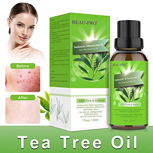 Anti-schuppen-behandlung (Teebaumöl Bio Naturrein 100% - Teebaum öl Tea Tree Oil für Shampoo Gesicht - Akne Öl, Acne Serum, Anti-Akne-Behandlung Gegen Unreine Haut, Anti Pickel, Akne -30ml)