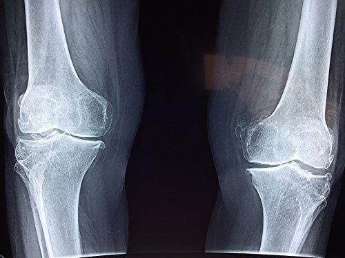 Derrotar a la osteoporosis: Eliminar la Osteoporosis por Manuel sanchez
