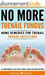 Toenail Fungus No More!: Home Remedie...