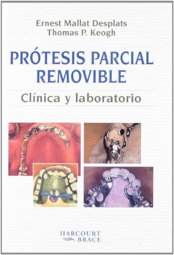 Protesis Parcial Removiable Colada: Clinica y Laboratorio por Ernest Mallat Desplats