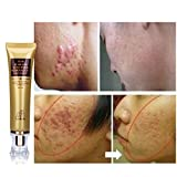 Best Scar Removal Product - Designeez Ginseng Extract Against Black Dots Scar Removal Review