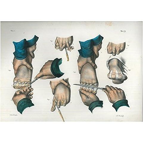 Amputazioni delle dita del piede.