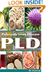 PLD Diet The Liver: Polycystic Liver...