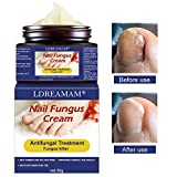Fungus Treatments Review and Comparison