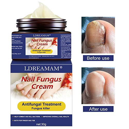 Funghi Unghie Trattamento,Trattamento Unghie,Fungo Unghie Piedi,Antimicotico,Fungus trattamento crema piedi nail protezione anti fungine delle unghie riparazione Unguento
