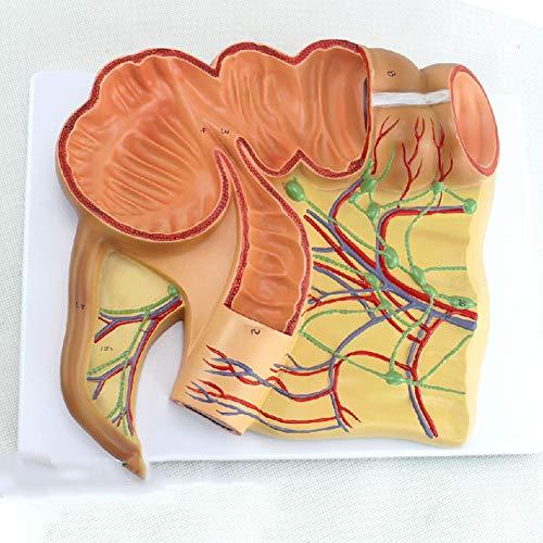 XIEJI Humanmedizin Anatomisches Modell Von Ileocecal Cecal Anhang Ileum Vaskulär Lymphoides Modell