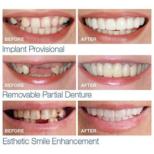 Zoom IMG-1 bzline denti da dentiera arcata