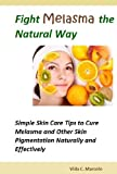 Fight Melasma the Natural Way- Simple Skin Care Tips to Cure Melasma and Other Skin Pigmentation Naturally and Effectively