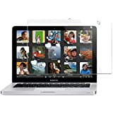 "IFyx Ultra Clear Glossy HD Screen Guard Scratch Protector For MacBook (Pro Retina 15"")"