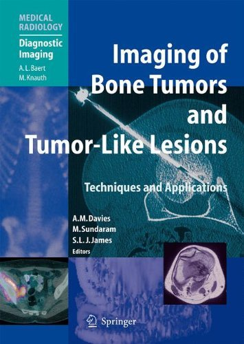 Imaging of Bone Tumors and Tumor-Like Lesions: Techniques and Applications (Medical Radiology) (2009-09-17)