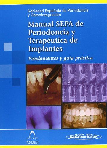 Manual S.E.P.A. de Periodoncia y Terapéutica de Implantes. Fundamentos y guía práctica