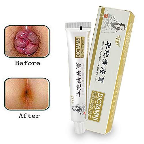 Chinesische Medizin Hämorrhoiden Creme, Anus Fissure antibakterielle Creme Hämorrhoiden Behandlung