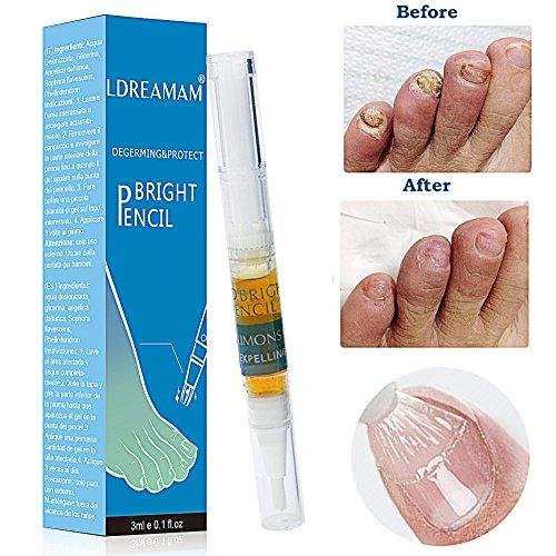 Antimicotico,Antimicotico per unghie,Micosi unghie,Nail Fungus Treatment,Per micosi unghie,Migliora la salute delle unghie di mani e piedi e Combatte la micosi