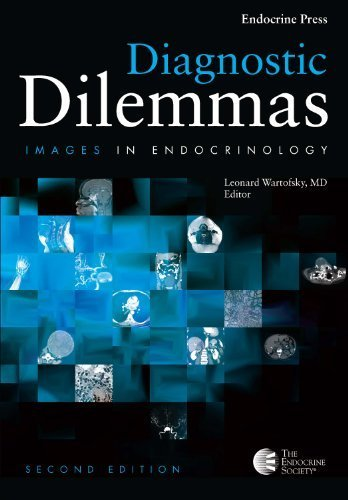 Diagnostic Dilemmas: Images In Endocrinology Volume 2 by The Endocrine Society (2013-01-01)