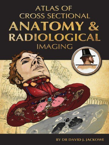 Atlas of Cross Sectional Anatomy and Radiological Imaging 1st Edition by David J. Jackowe (2012) Paperback