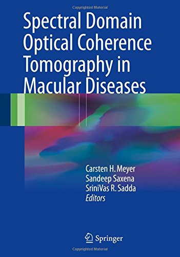 spectral-domain-optical-coherence-tomography-in-macular-diseases