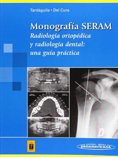Monografía SERAM: Radiología ortopédica y radiología dental: una guía práctica (Tardáguila / Del Cura)