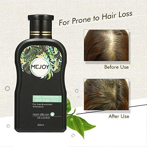 Shampooing ANTI-CHUTE, Y.F.M Anti Chute de Cheveux Shampooing Anti-Pellicules, Shampooing Professionnel,Renforce les Follicules pour la Repousse des Cheveux Infusé,Pour Tous Types de Cheveux Shampoing