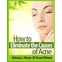 How to Eliminate the Causes of Acne (English Edition)
