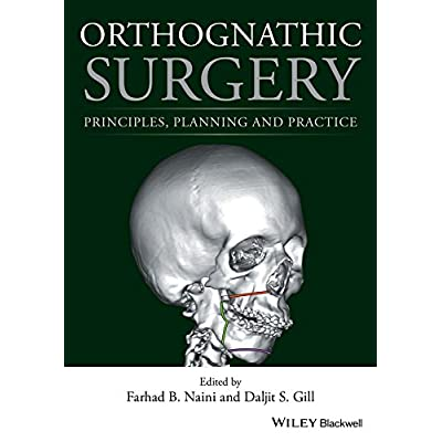 Orthognathic Surgery Principles Planning And Practice
