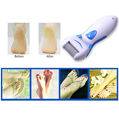 Callus Remover IMS Foot File Skin Remover Electric Callus Remover Pedicure Foot Care Tool Powerful Foot Callus Removal Tool Pedicure Kit Shaver Electric Callus For Men & Women Remover Electronic Foot File Professional Foot Spa Health Feet Care Removes Coarse Tough Skin Dead Hard Skin Calluses Repair & Smooth Cracked Dry Rough Feet
