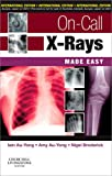 On-Call X-Rays Made Easy, International Edition