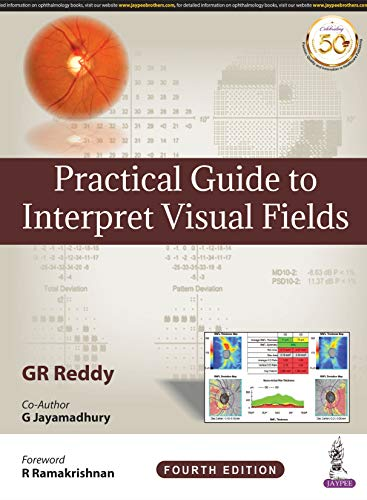 Practical Guide to Interpret Visual Fields