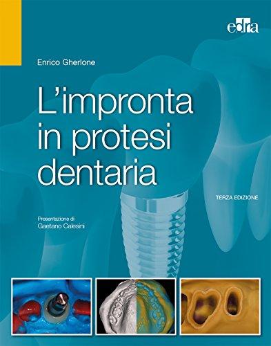 L'impronta in protesi dentaria