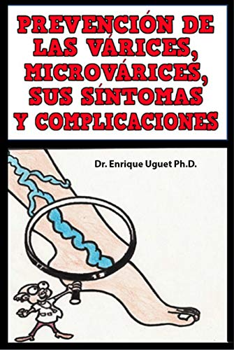 Prevencion de las Varices, Microvarices, sus sintomas y complicaciones: (Color) por Enrique Uguet