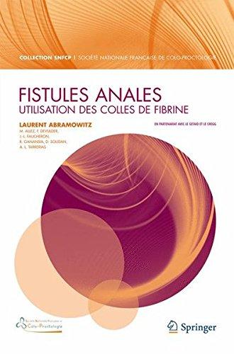 Fistules anales: utilisation des colles de fibrine