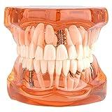 1Pcs Modelo Dental para Aprendizaje de Dentista Modelo de Dientes Dentadura Desmontable para Enseñanza (Naranja)