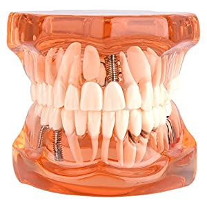 odontologia: Walfront 1Pcs Modelo Dental para Aprendizaje de Dentista Modelo de Dientes Denta...