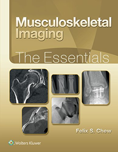 Musculoskeletal Imaging: The Essentials (English Edition)