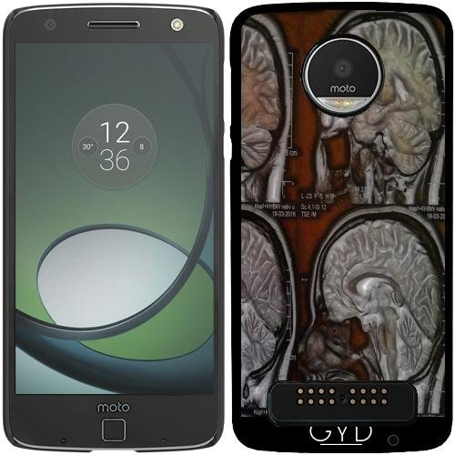 DesignedByIndependentArtists Hülle für Lenovo (Motorola) Moto Z Play - Die Roswell Archiv by Lucia