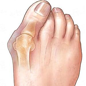 AcmeBuy(TM 1 Packungen Fußpflege Pediküre Soft Gel Sosu Hallux Valgus Pro Silikon Fußpflege für Fersen Orthopädische große Zehentrenner Knochen Daumen