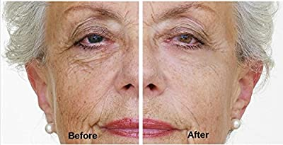NEW & IMPROVED Immaculift Instant Face Lift / Eye lift Serum 20ml. Eliminates wrinkles in minutes - lasts for hours!