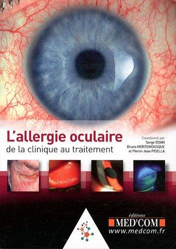 L'allergie oculaire
