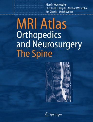 MRI Atlas: Orthopedics and Neurosurgery, The Spine by Martin Weyreuther (2010-10-14)