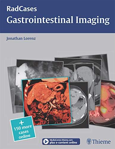 Gastrointestinal Imaging (RadCases) (English Edition)