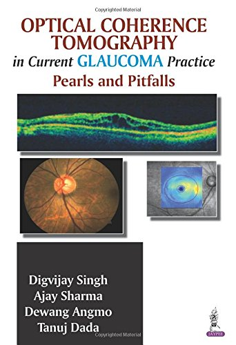 Optical Coherence Tomography in Current Glaucoma Practice: Pearls and Pitfalls por Digvijay Singh