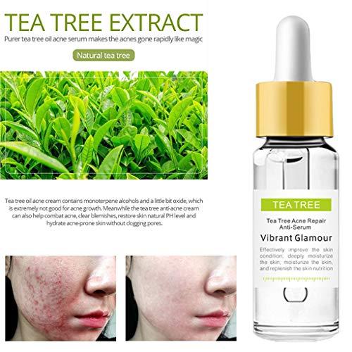 LCLrute Tea Tree Anti-Acne Serum Acne Scar Acne Treatment Acne To Print Anti-wrinkle Essence Oil-control Shrink Pores (C)