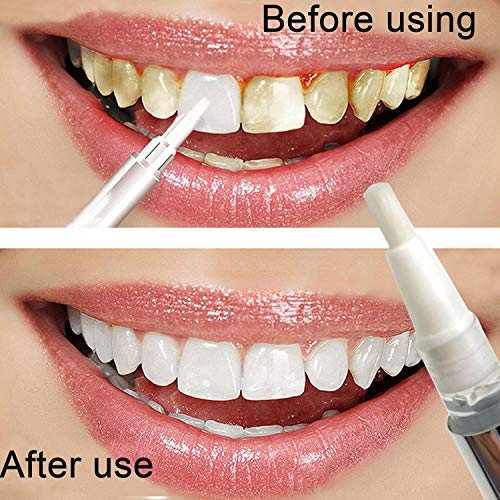 nuiko Zahnaufhellung Gel Stift Dental White Bleaching Zahn Aufheller Fleckenentferner Bleachings -