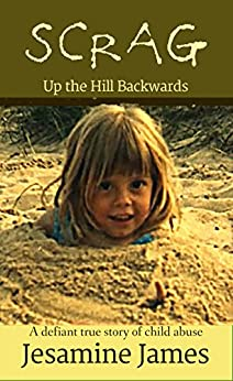 Scrag - Up The Hill Backwards: A defiant true story of child abuse (English Edition) de [James, Jesamine]