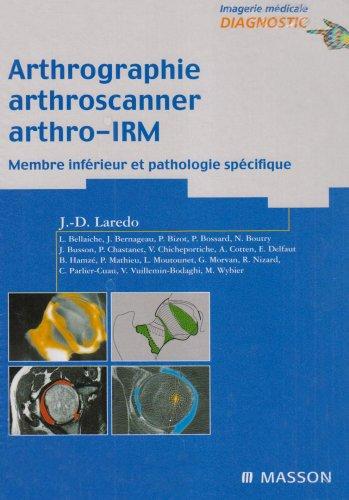 Arthrographie, arthroscanner, arthro-IRM, tome 2 : membres inférieurs et pathologies