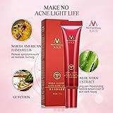 Clinivex Rosacea Cream Red Nose Ointment Remove Blackhead Acne Cream Skin Care Herbal