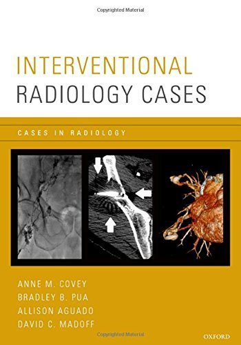 Interventional Radiology Cases (Cases in Radiology) by Oxford University Press (2015-02-04)
